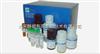 DURE-100脲素酶测试盒 QuantiChrom™ Urease Assay Kit