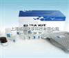 小鼠ELISA定量检测试剂盒测定原理及操作